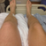 Image 4: Professor Green Swollen Leg