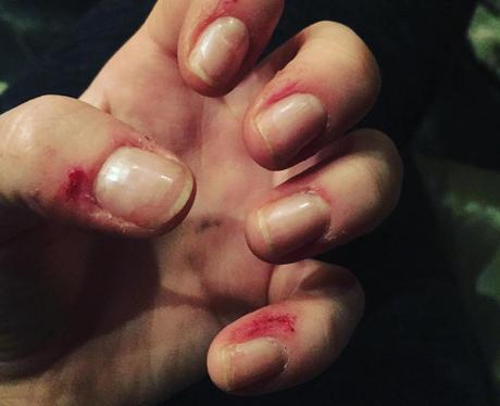 Ellie Goulding shows off hand injuries