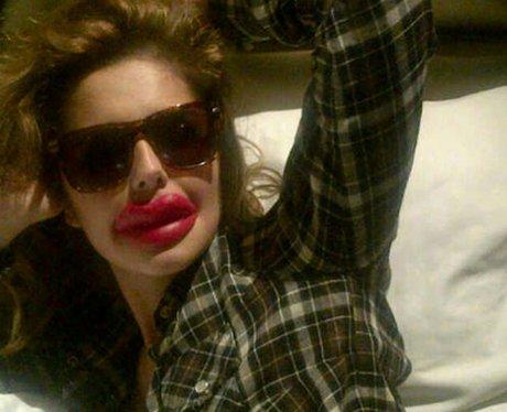 Cheryl Cole lips