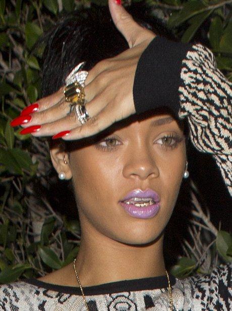 Rihanna wearing teeth grillz