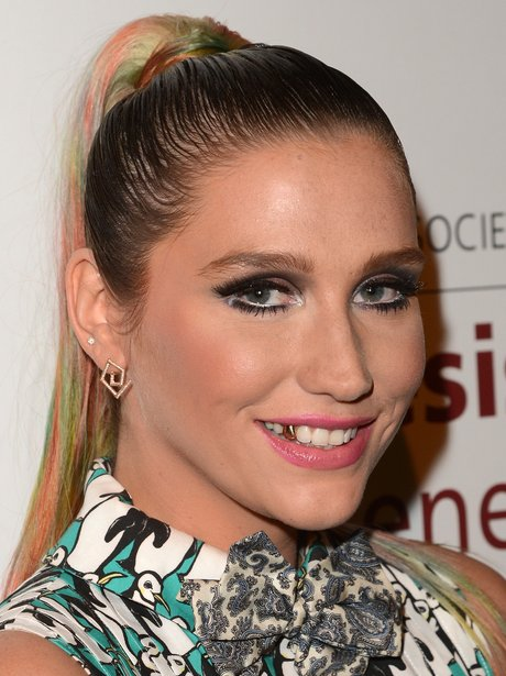 Ke$ha wearing gold grillz