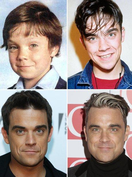 celebrity Transformations: Robbie Williams