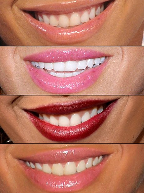 Guess The Celebrity Smile?