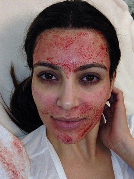 Kim Kardashian blod selfie
