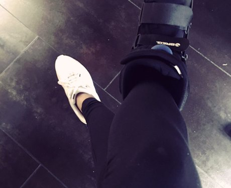 Hailey Baldwin breaks her foot exactly one year on