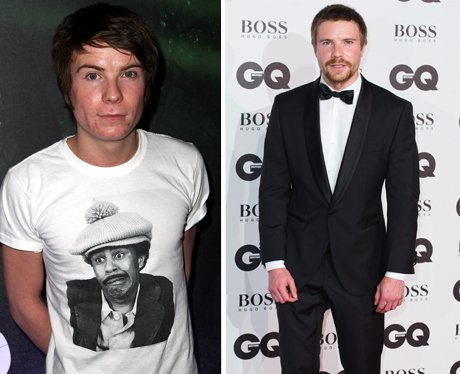 Skins Cast Then and Now Joe Dempsie