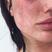 Image 3: Charlotte Crosby Freckles Instagram